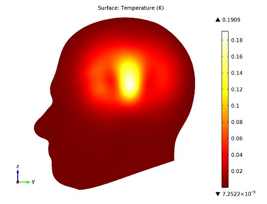 Specific absorption rate (SAR) in the human brain, local increase in temperature