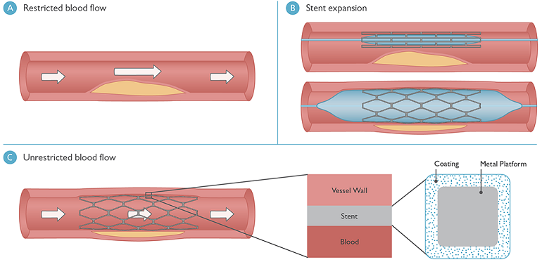 Diagram showing restricted blood flow, a stent in a blood vessel, and unrestricted blood flow due to the use of a stent