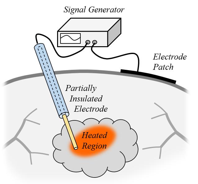 单极射频针和贴片电极的示意图。