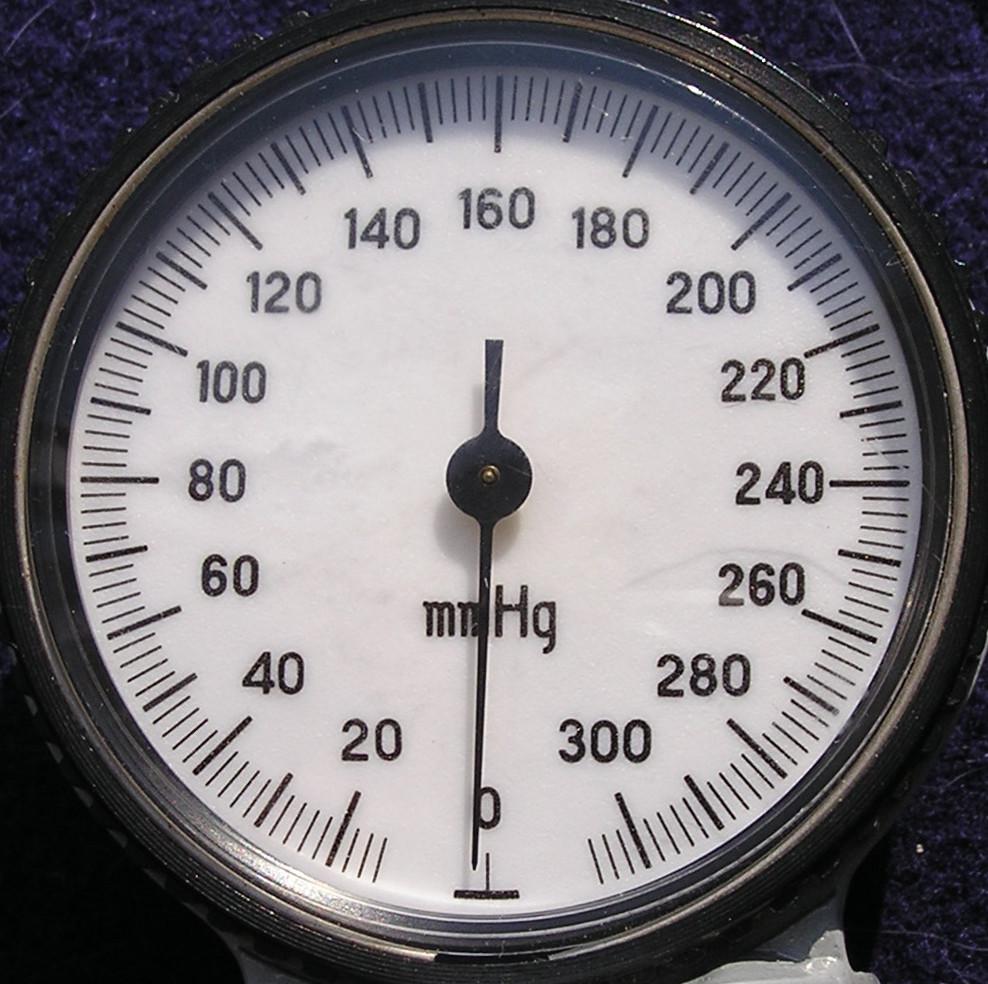 血压测量仪的照片。