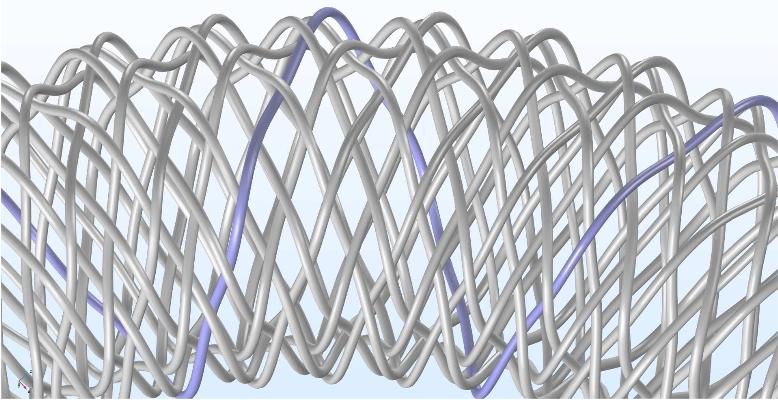 图像用一根线突出显示了血流导向支架的波形。