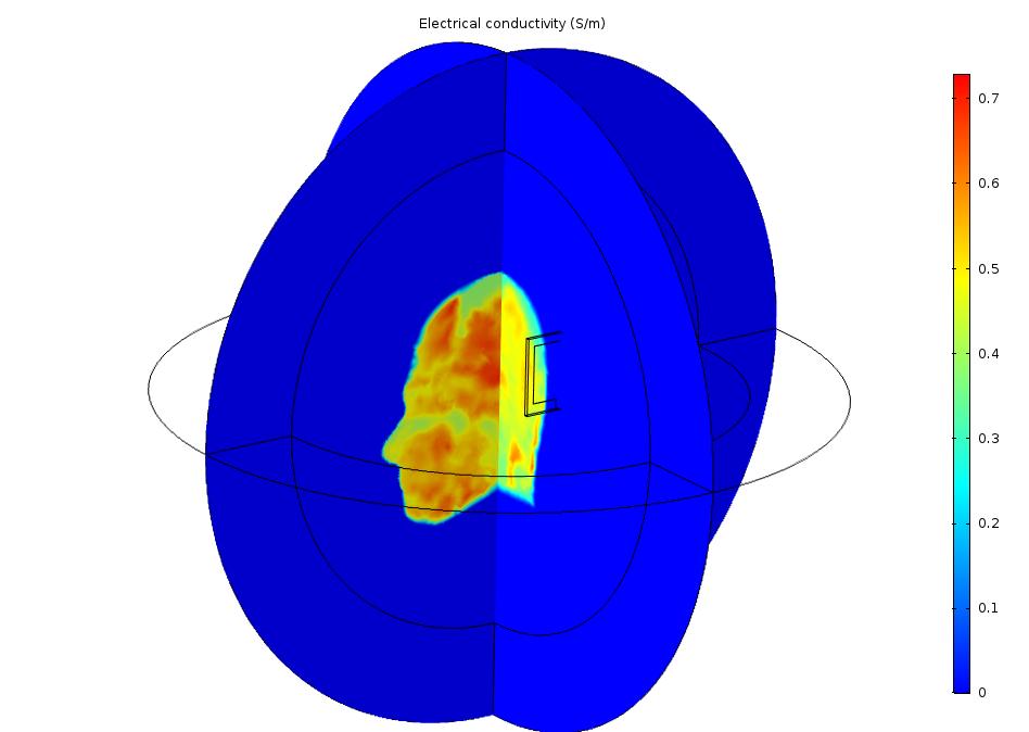 切面图显示了空气和人体头部的电导率