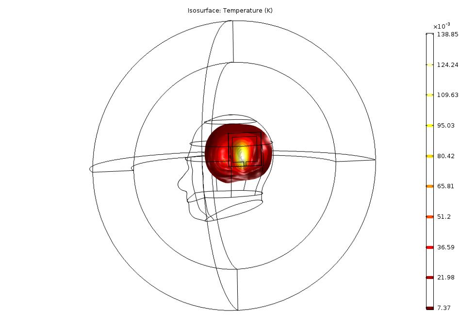 该模型显示由于天线吸收了辐射而导致人脑温度升高的模型。