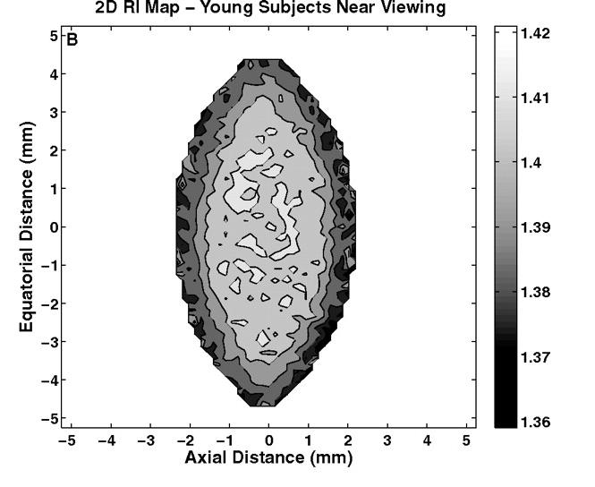 通过磁共振成像测量的人眼 GRIN 的图像。