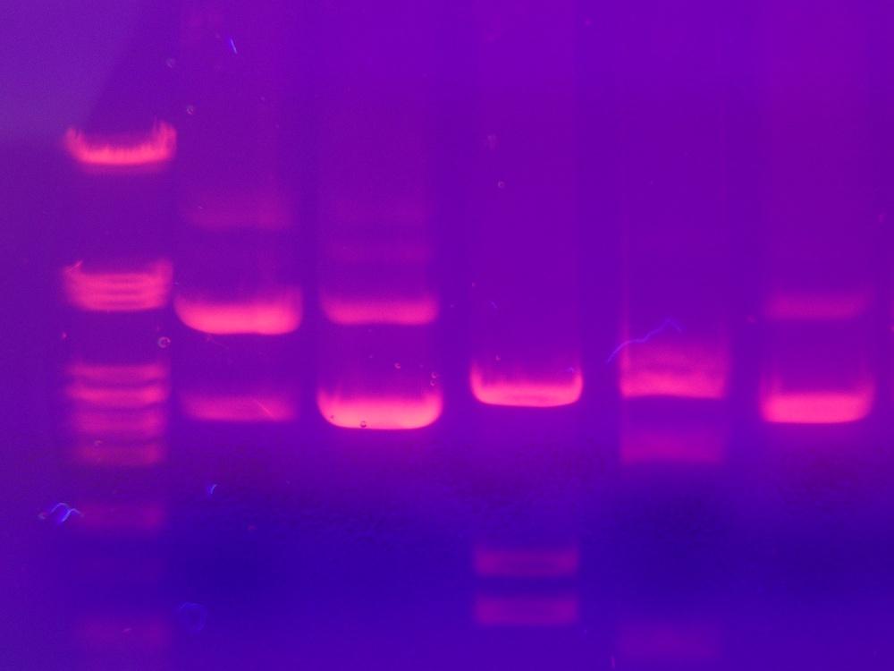 凝胶电泳DNA测试结果的照片。