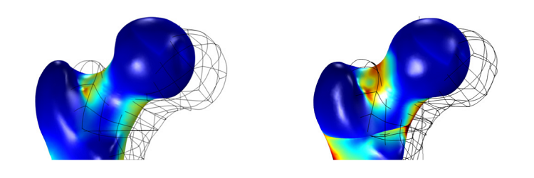 Stress in the femur head in models made with isotropic and anisotropic materials