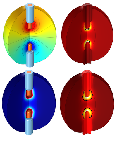 Simulation results for a radiofrequency tissue ablation model featured