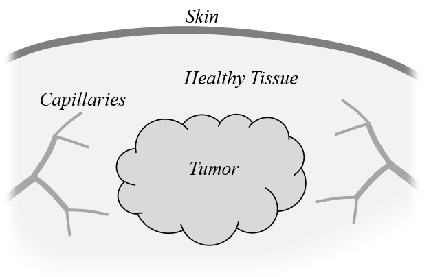 A schematic of a tumor within healthy tissue.