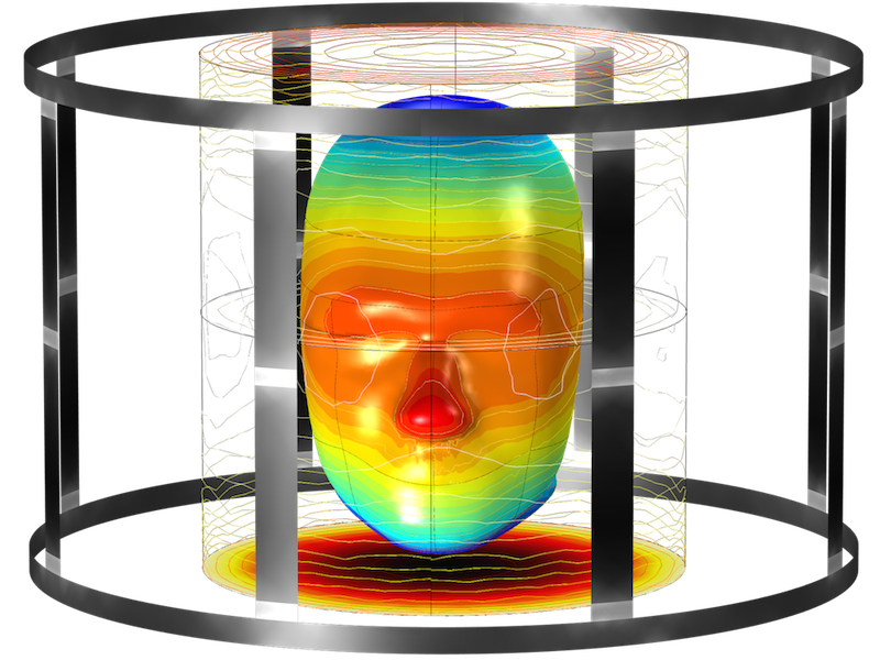 An image of simulation results for the magnetic flux density around an MRI birdcage coil.