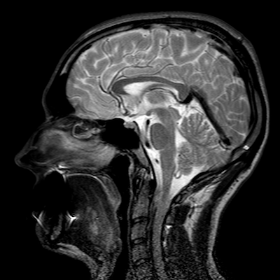 An MRI scan of a human head.