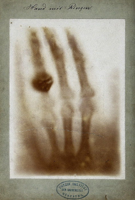 A photograph showing the first X-ray, which is of a hand.