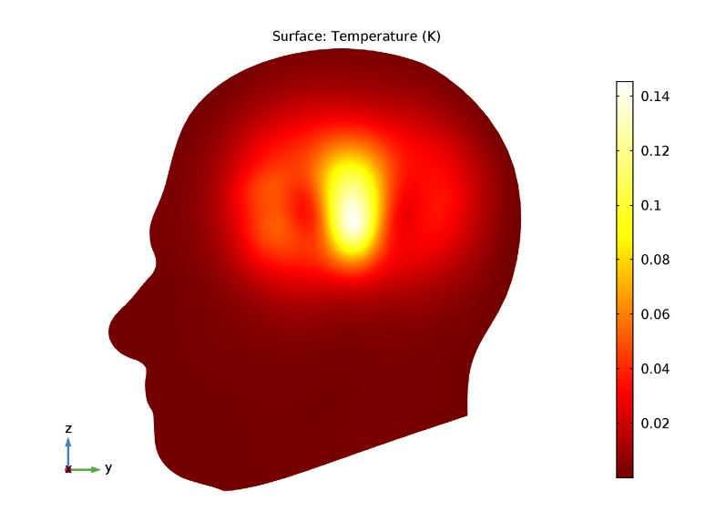 A COMSOL Multiphysics® results plot showing the specific absorption rate in human tissue.