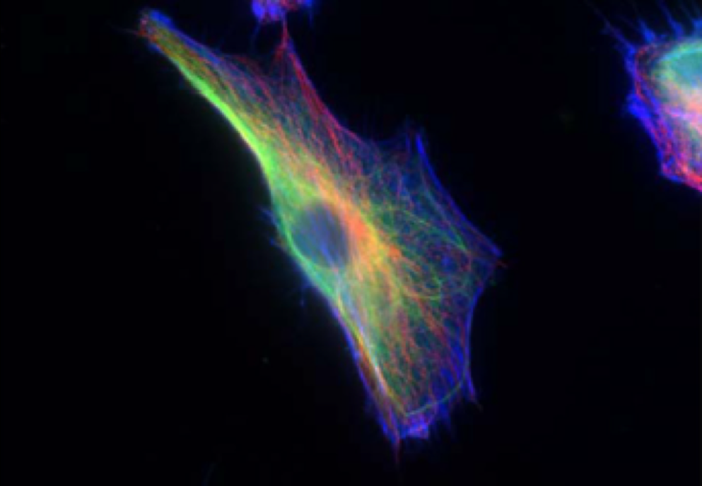 The cytoskeleton of a fibroblast cell is visualized in blue, green, and red.