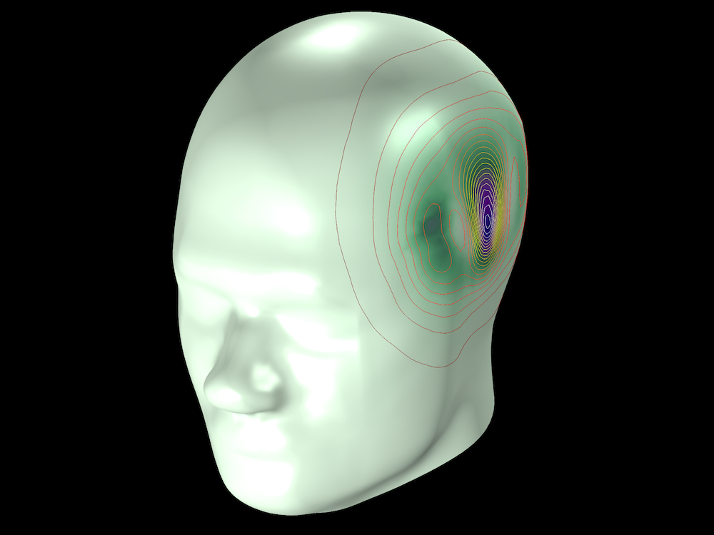 An SAR model of a human head with the temperature variation shown.