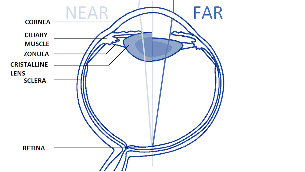 A schematic showing the anatomy of the human eye and how it affects near and far vision.
