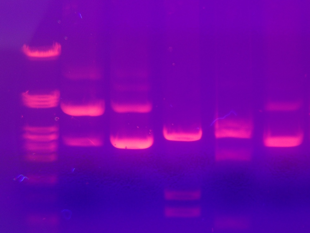 A photograph of results from a gel electrophoresis DNA test.
