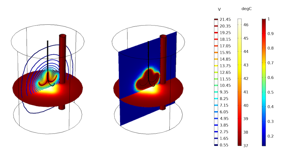 Simulation results showing predicted liver tissue damage in COMSOL Multiphysics.
