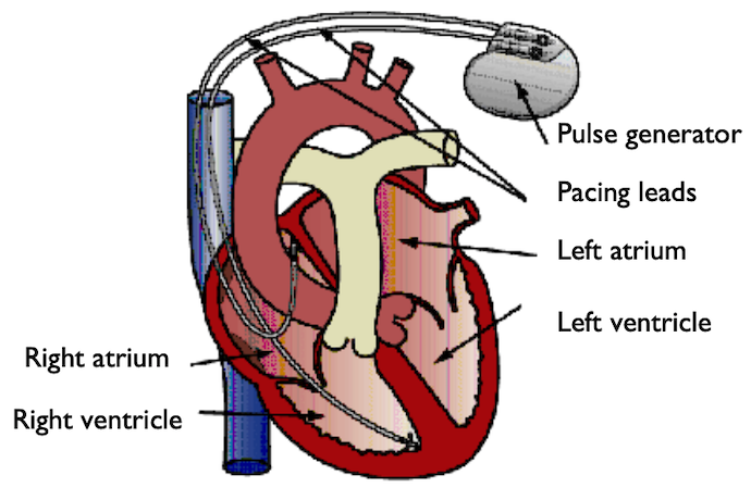 A schematic of a heart with two pacemaker electrode pairs.