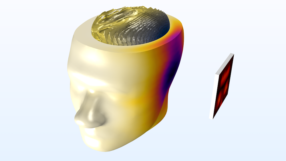 An image showing the SAR of a human head modeled in COMSOL Multiphysics.