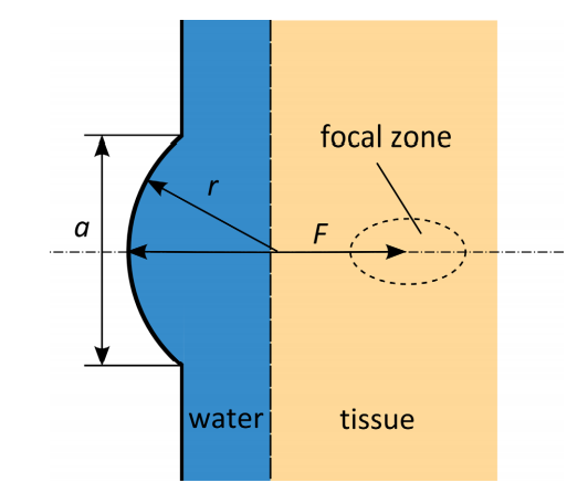 A schematic showing a 2D axisymmetric geometry of the HIFU model, with the water and tissue domains visualized in blue and yellow, respectively.