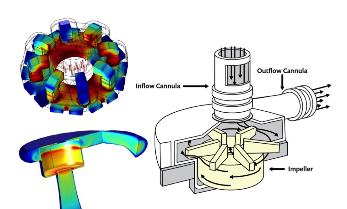 A simulation of an LVAD's magnetically levitated rotor (top left) and pump chamber (bottom left). An illustration of the centrifugal pump of an LVAD (right).