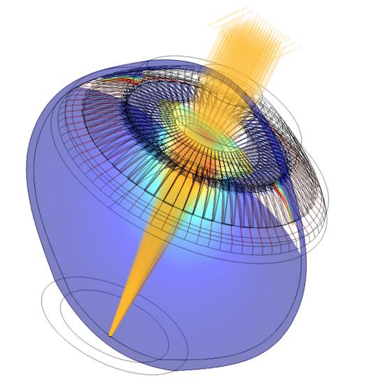 A parametric optomechanical model of a human eyeball.